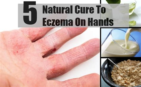 5 Natural Cure For Eczema On Hands - How To Cure Eczema On