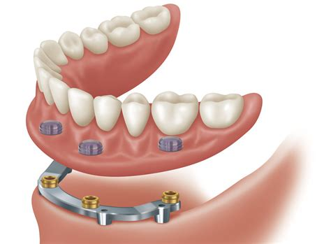 Implant Supported Overdenture - Permanent Dentures