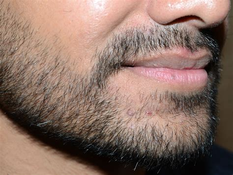 Beard Transplants: Everything You Need to Know | Men's Journal