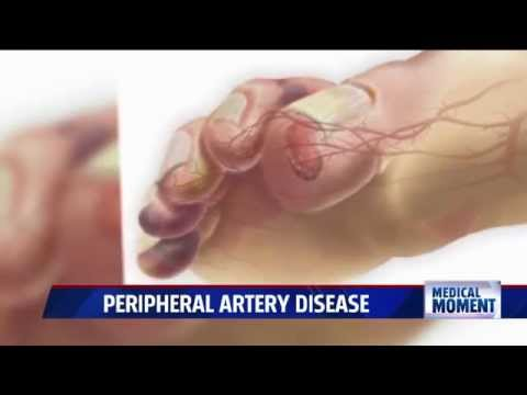 10 Possible Signs and Symptoms of Clogged Arteries You
