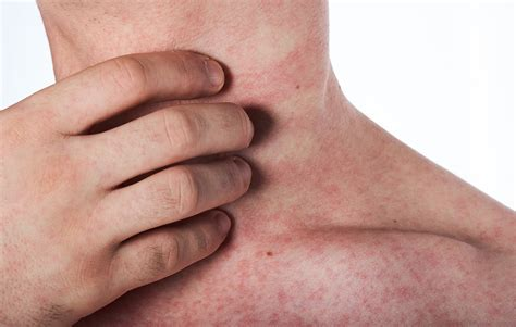 Causes Of Stress Rashes On Neck - Nelsons Books