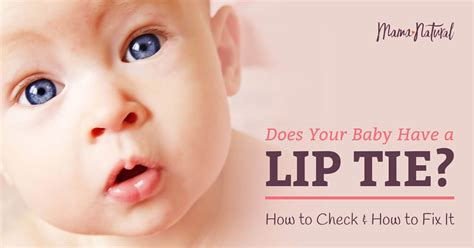 How to tell if baby has a lip tie ONETTECHNOLOGIESINDIA